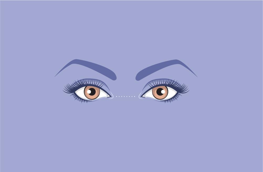 close-set-eyes