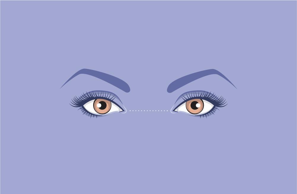 wide-set-eyes